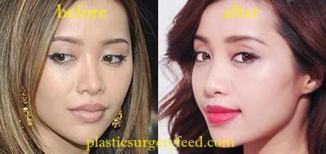 Michelle Phan Eyelid Surgery