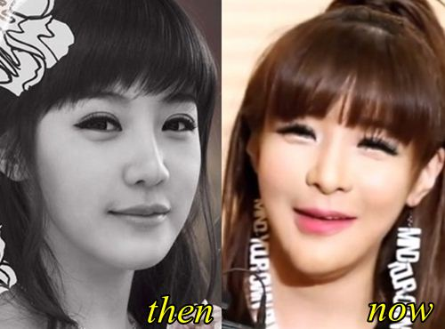 Park Bom Chin Enhancement
