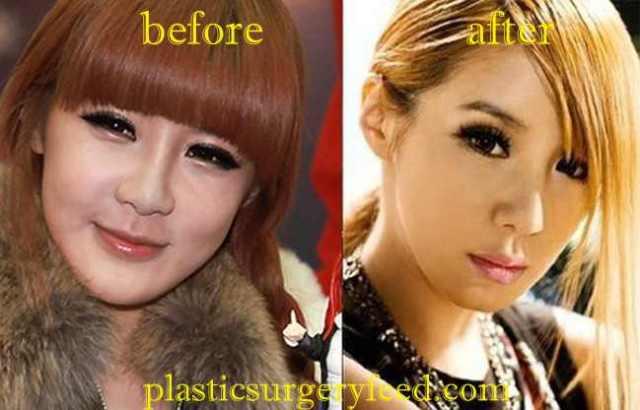 Park Bom Eyelift Surgery