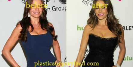 Sofia Vergara Liposuction