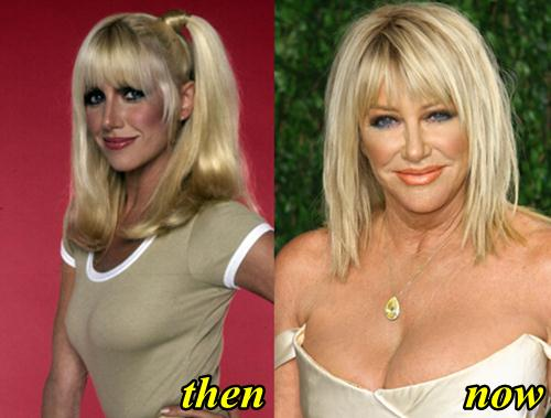 Suzanne Somers Breast Reduction
