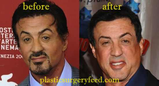 Sylvester Stallone Forehead Surgery