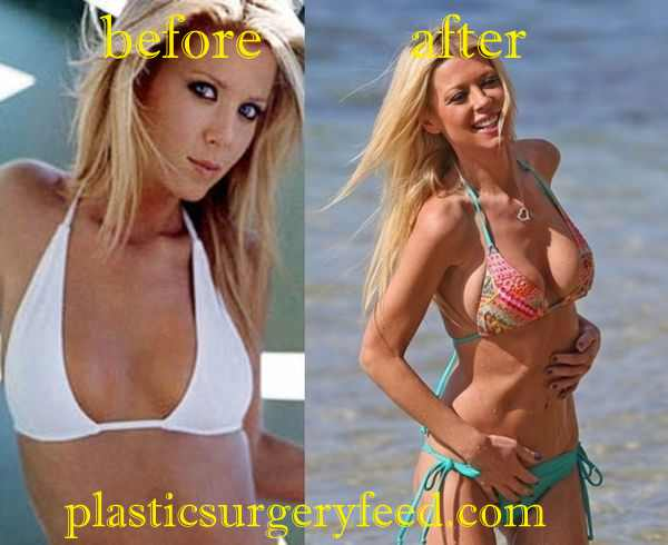 Tara Reid Breast Implant