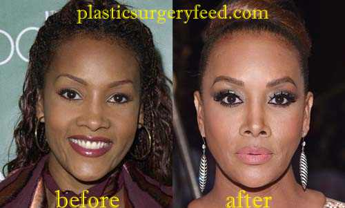 Vivica Fox Nose Job