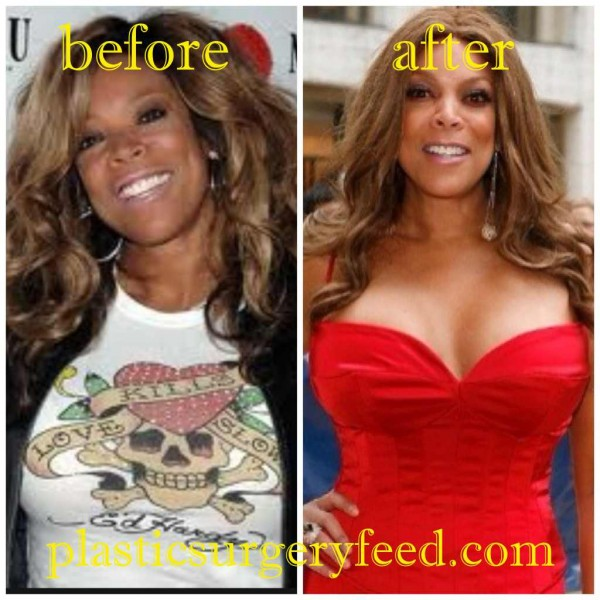 Wendy Williams Breast Implants