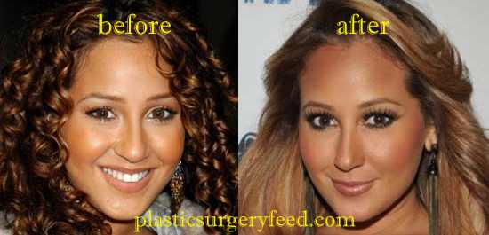 Adrienne Bailon Rhinoplasty Nose Job