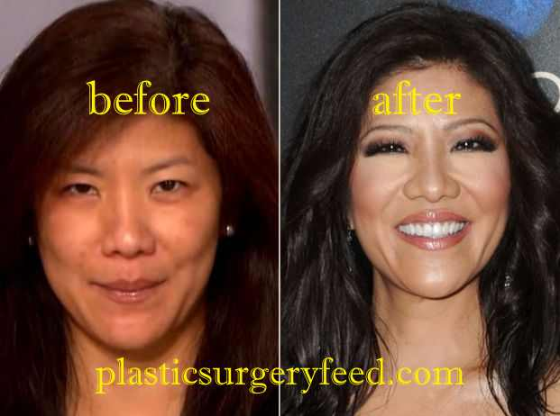 Julie Chen Blepharoplasty