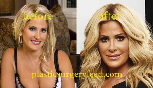 Kim Zolciak Nose Job