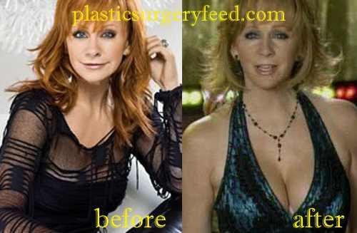 Reba McEntire Breast Lift
