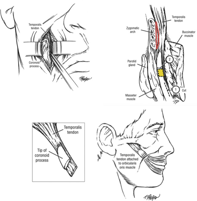 Temporalis Muscle Tendon Unit Transfer for Smile