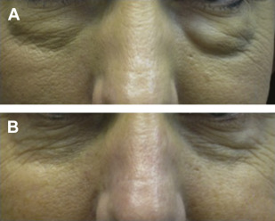 Facial Filler Complications   Plastic Surgery Key