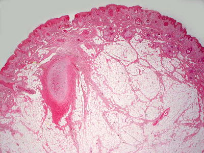 Benign Hamartomatous Proliferations | Plastic Surgery Key