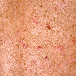 Papillomatous and Verrucous Lesions | Plastic Surgery Key