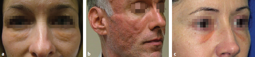 Dermal Fillers and Neurotoxins | Plastic Surgery Key
