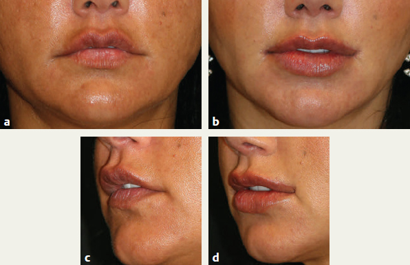 Perioral Aesthetic Surgery | Plastic Surgery Key