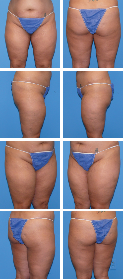 Liposuction of the Upper and Lower Extremities | Plastic