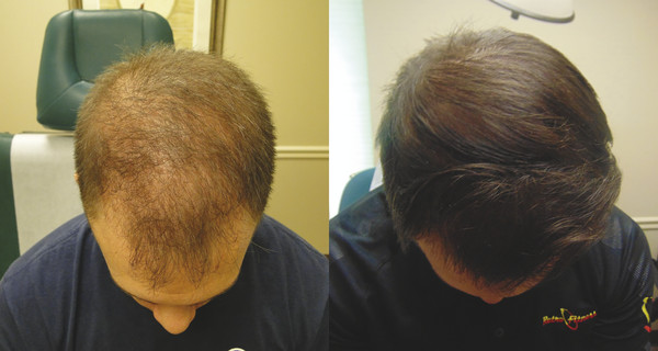 Before and after 9 PRP treatments in a 29-year-old male.