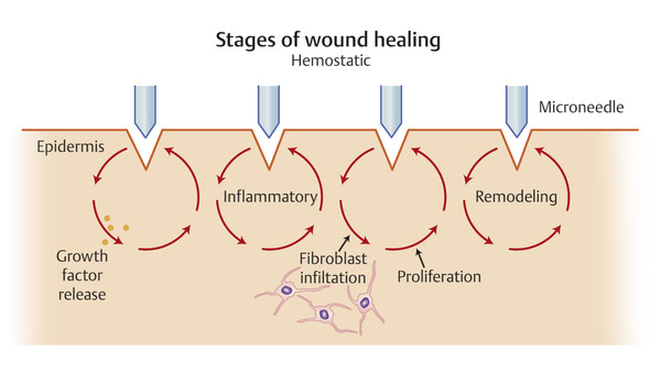 Fractional mechanical microinjury hypothesis for the mechanism of action in microneedling. Tiny, superficial wounds form a strong stimulus for growth factor release and fibroblast infiltration followi