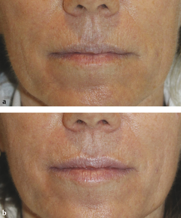 Perioral rhytides at (a) baseline and (b) 3 months after one microneedling session.
