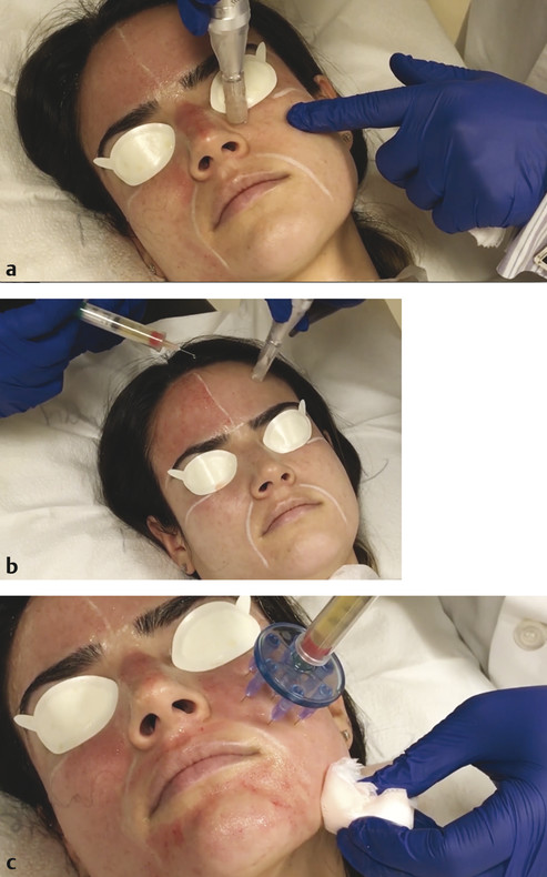 Microneedling with PRP. (a) The microneedling device is first used to create minute puncture wounds. (b) Topical PRP is then applied to the skin using a syringe. (c) Alternatively, PRP can be injected