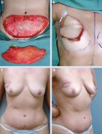 23 Partial Breast Reconstruction Using Distant Flaps
