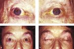 13 The Use of Autologous Grafts in Ophthalmic Plastic Surgery
