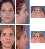 21 Endonasal Rhinoplasty