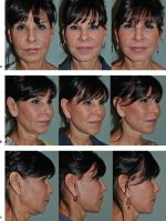 29 Short-Incision Facelift and Necklift