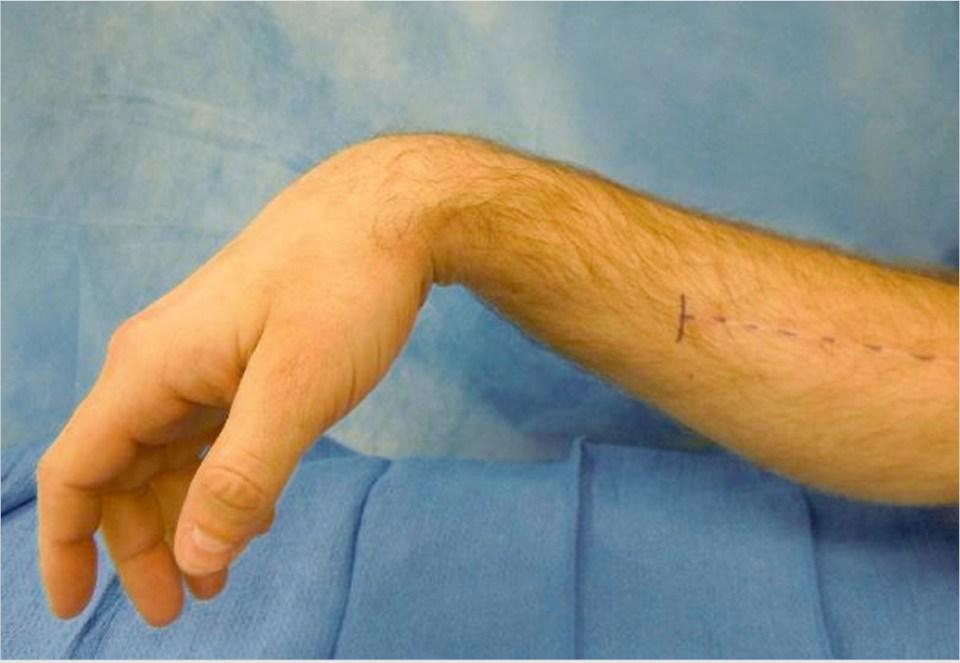 Radial Nerve Injury   Plastic Surgery Key