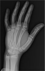 Metacarpal and Phalangeal Fractures