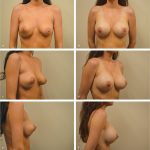 16 Subfascial Inframammary Breast Augmentation