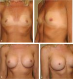 17 Transaxillary Approach to Endoscopic Breast Augmentation