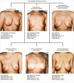 21 Decision Making in Mastopexy