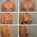42 Prepectoral Direct-to-Implant Breast Reconstruction