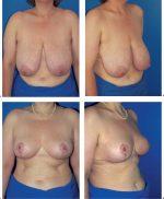 4 Mastopexy and Reduction Mammaplasty