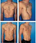 5 Breast Deformities