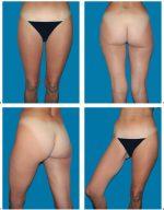 6.5 Free Transverse Myocutaneous Gracilis Flap