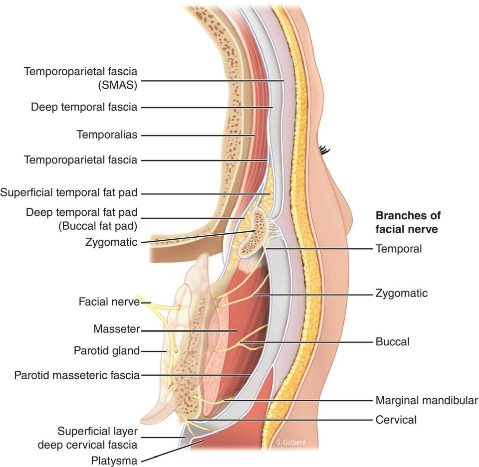 3D Diagram illustrating the relationship of the facial fasciae in the lateral cheek/temporal region with lines marking temporoparietal fascia (SMAS), deep temporal fascia, temporalias, temporoparietal fascia, etc.