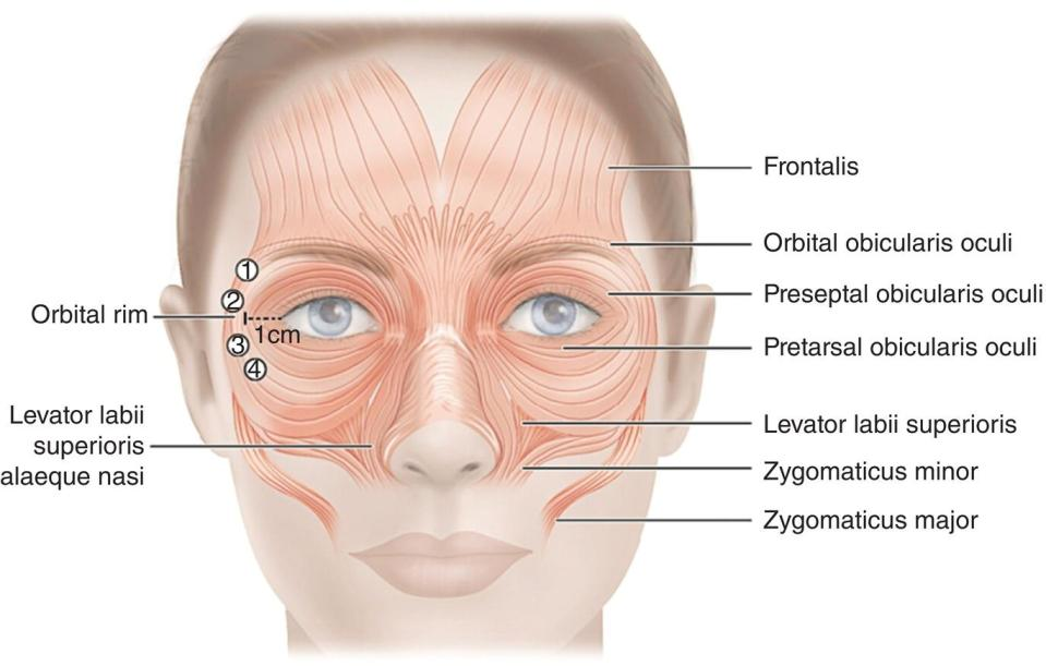 Illustration of a human face with lines marking frontalis, orbital obicularis oculi, preseptal obicularis oculi, pretarsal obicularis oculi, levator labii superioris, zygomaticus minor, orbital rim, etc.