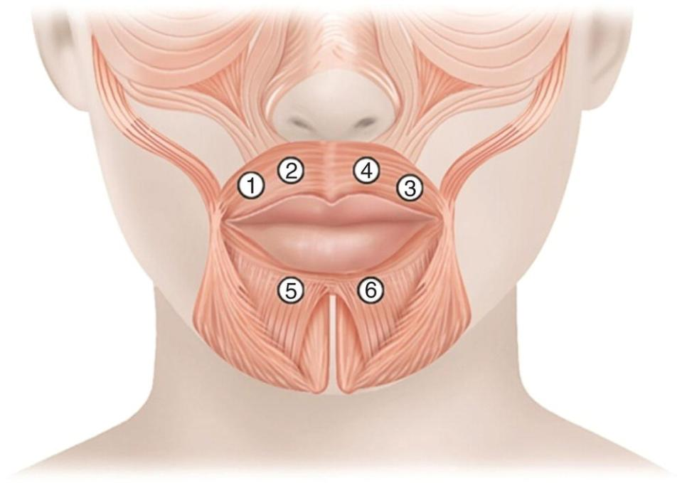 Illustration of the injections sites for radial lines around the lips. Sites 1, 2, 4, and 3 are indicated above the upper lip and sites 5 and 6 below the lower lip.