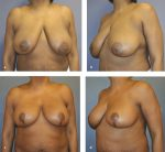 10 Management of the Massive-Weight-Loss Breast