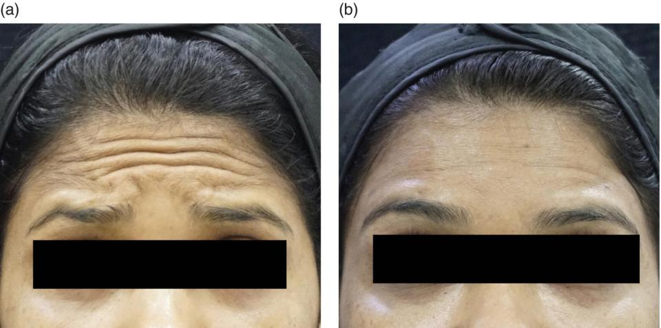 A close-up view of a woman with forehead lines depicting before injection (left) and less forehead lines depicting after injection (right).