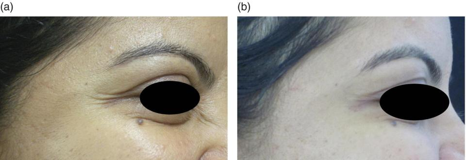 A close-up view of a woman's outer eye with crow's feet before BoNT injection (left) and less crow's feet after BoNT injection (right).