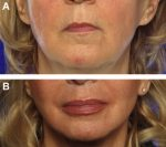 Fat Grafting for Facial Rejuvenation with Nanofat Grafts
