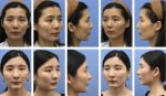 Fat Grafting for Pan-Facial Contouring in Asians