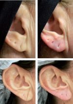 Chapter 15 Filler Injection of the Preauricular Region and the Earlobe