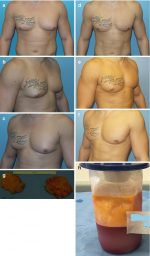 Liposuction of Gynecomastia