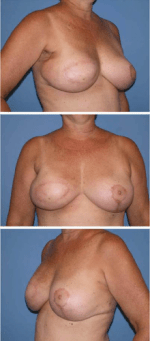 Radiation Therapy and Breast Reconstruction: A Critical Review of the Literature