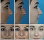 Rhinoplasty: Dimensional analysis and planning