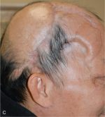 Aesthetic cranioplasty